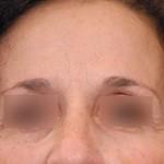 Toxine botulique - APRES