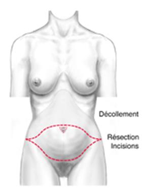 Tout savoir sur la plastie abdominale