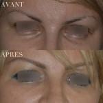 cerne avant et après injection