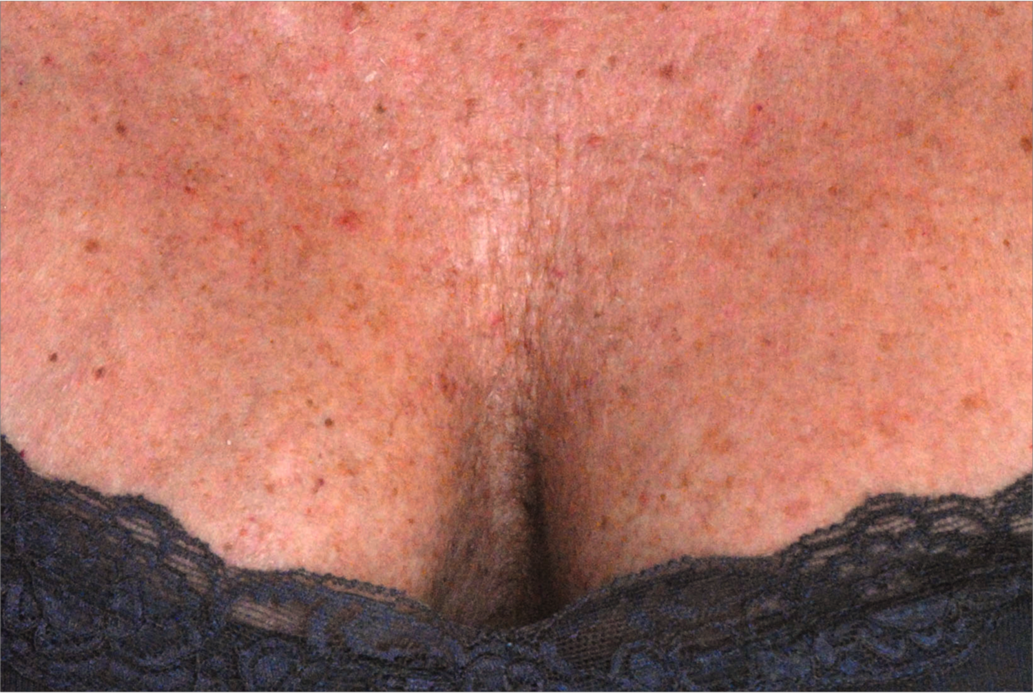 Before-méso-needling