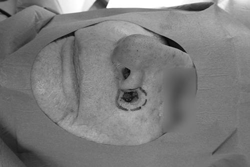 Tout savoir sur la chirurgie dermatologique