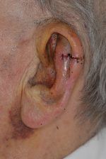 La chirurgie dermatologique