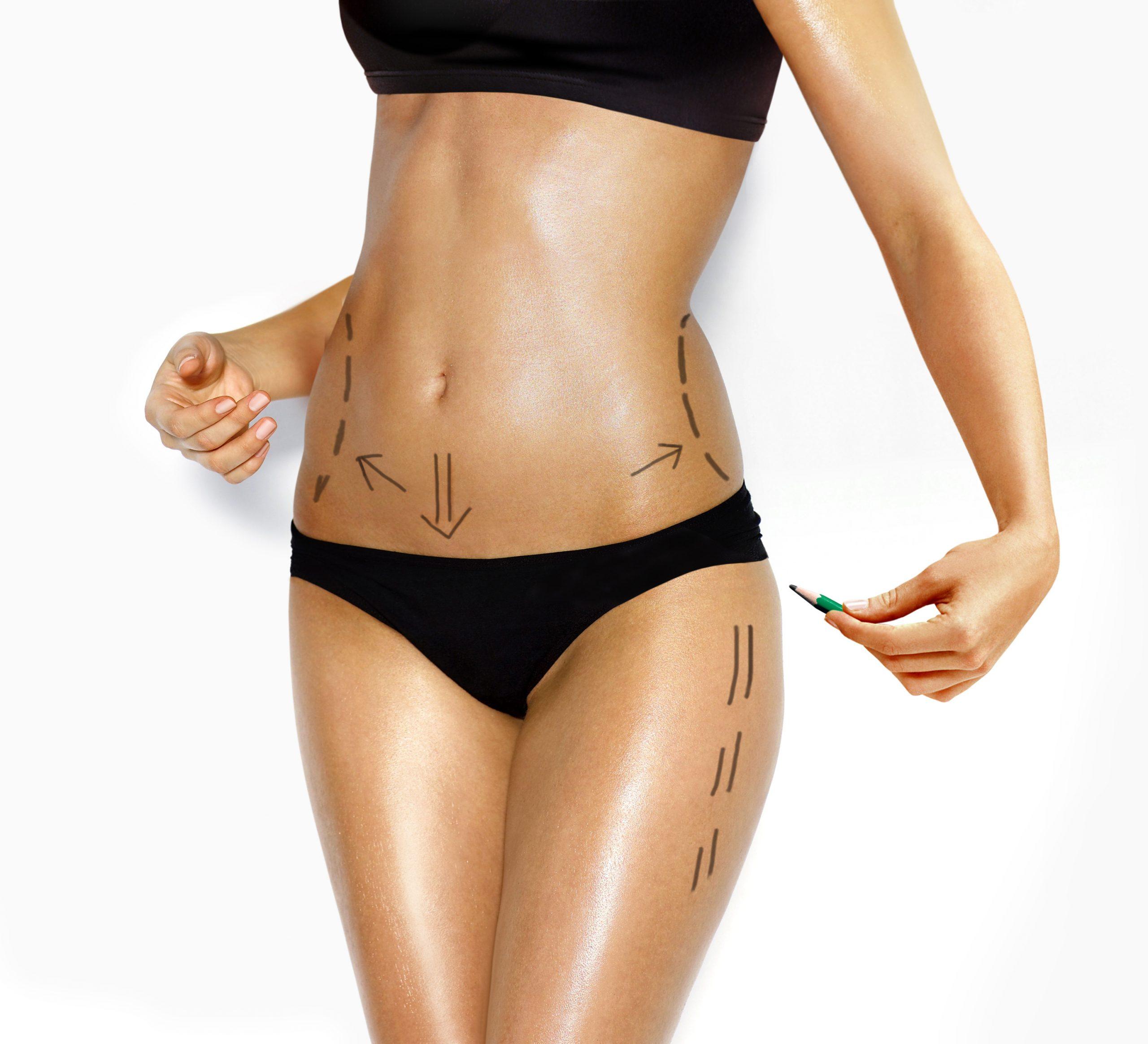 Plastie abdominale ou chirurgie esthétique du ventre